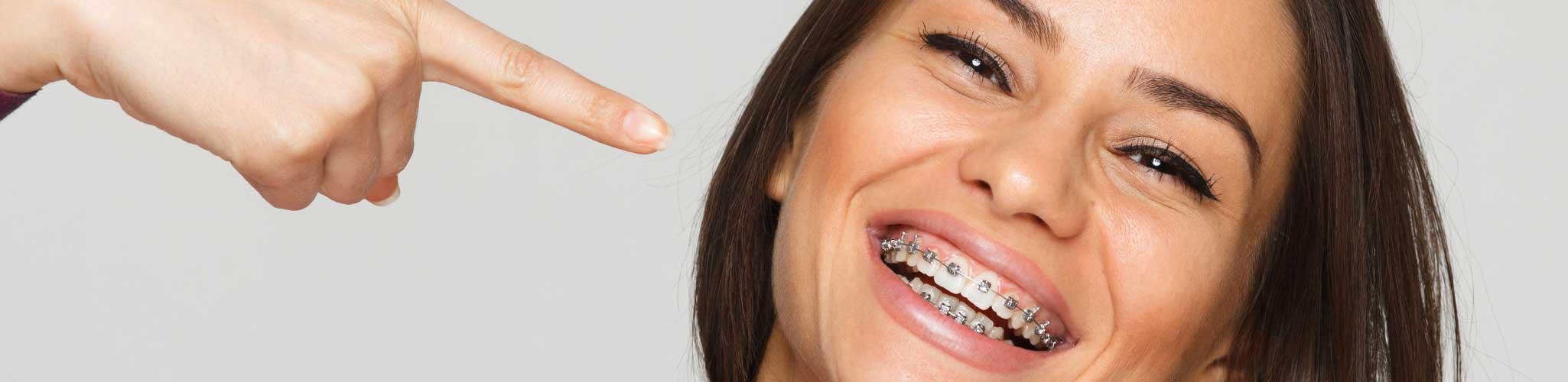 Damon Braces - Teeth In Line