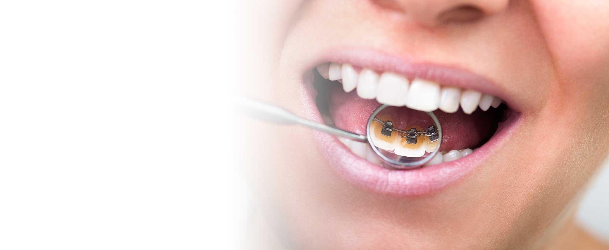 Lingual Braces - Teeth In Line