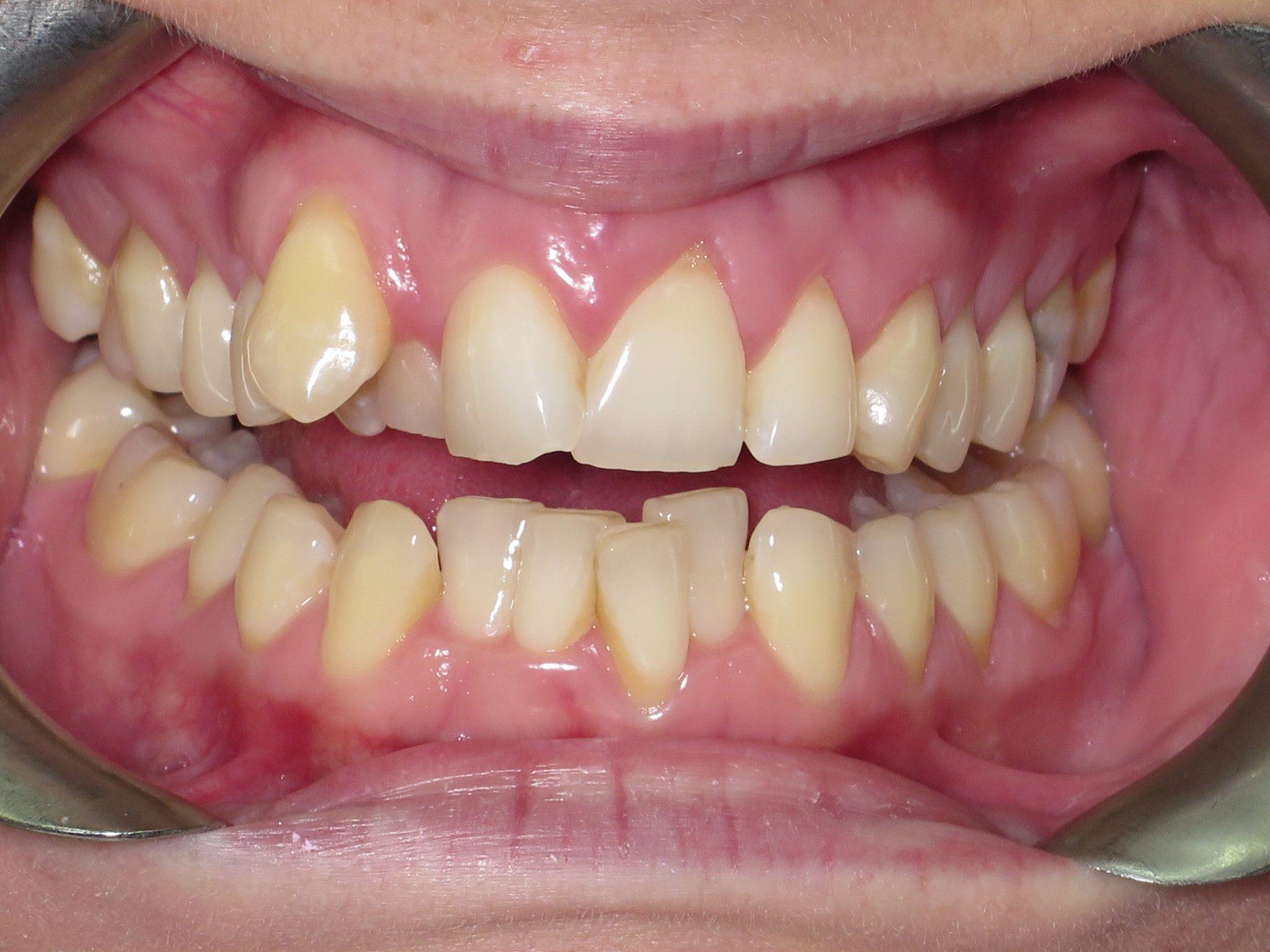 Crooked/Overcrowded Teeth - Teeth In Line